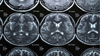 [Commentary] Infection with the CCP Virus May Cause Brain Tissue Atrophy and Cognitive Functions Decline